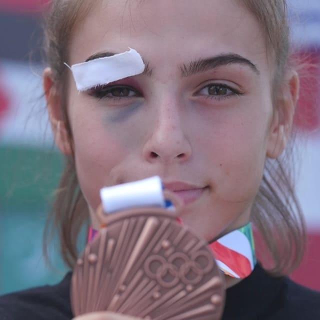 멍든 눈은 코소보 최초의 YOG 메달리스트에게는 문제가 아니다.