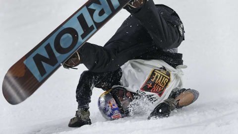 Battered, bruised, but ok: Mark Mcmorris posts picture after surgery