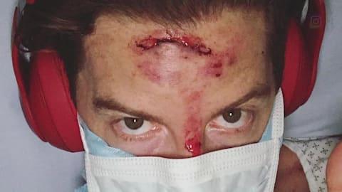 شون يؤدي القفزة التي تسببت في اصابته